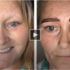 Microblading gives woman felt tip-style eyebrows